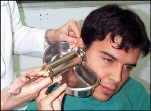 Limpieza de oidos