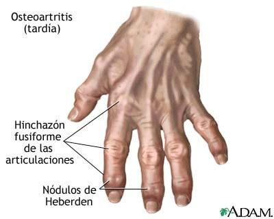 La Artritis de la Mano y de la Muñeca